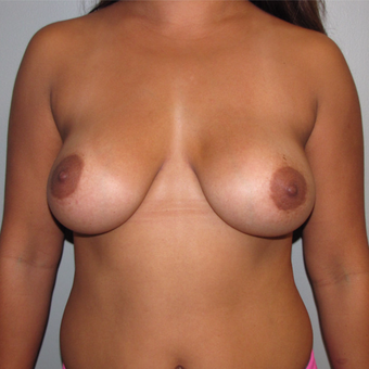 25-34 year old woman treated with Breast Implant Removal before 3508125