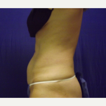 52 year old female's abdomen treated with 1 SculpSure treatment after 2814904