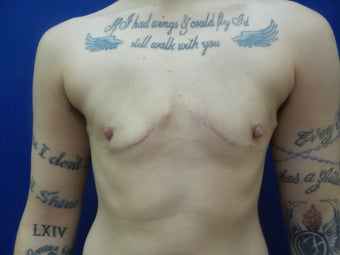 25 year old woman treated with FTM Chest Masculinization Surgery after 2256424