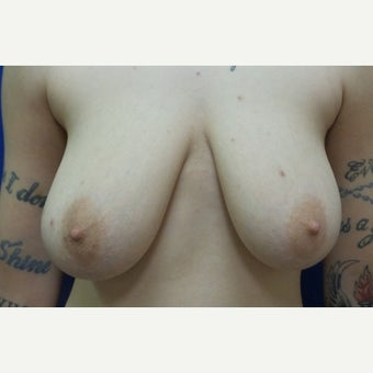 25 year old woman treated with FTM Chest Masculinization Surgery before 2256424