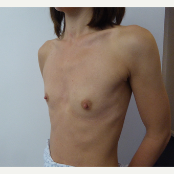 35-44 year old woman treated with Breast Augmentation before 3375699