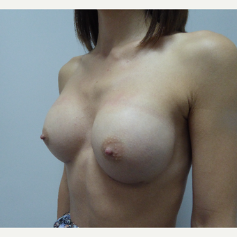 35-44 year old woman treated with Breast Augmentation after 3375699