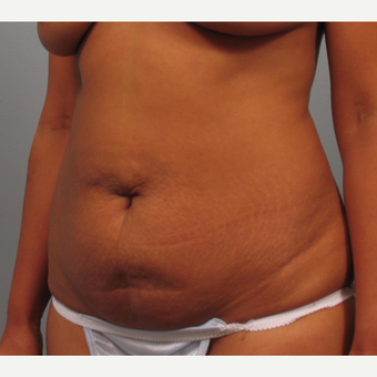 35-44 year old woman treated with Tummy Tuck before 3423457