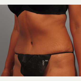 35-44 year old woman treated with Tummy Tuck after 3423457