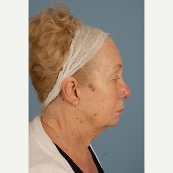 75 year old woman treated with Facelift before 3839659