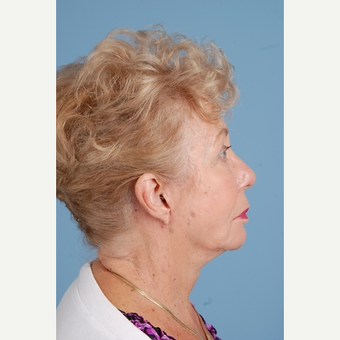 75 year old woman treated with Facelift after 3839659
