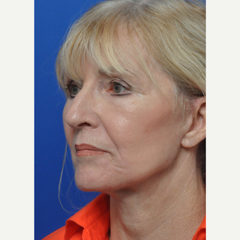 55-64 year old woman treated with Facelift after 3440141