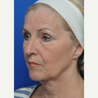 55-64 year old woman treated with Facelift before 3440141
