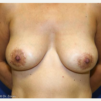 45-54 year old woman treated with Breast Lift after 3037387