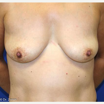 45-54 year old woman treated with Breast Lift before 3037387