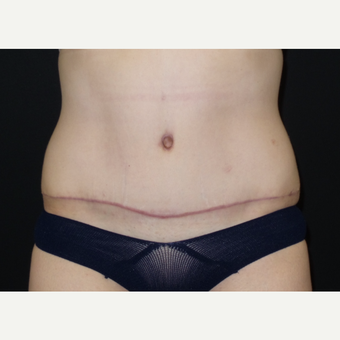 25-34 year old woman treated with Tummy Tuck after 3094375