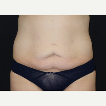 25-34 year old woman treated with Tummy Tuck before 3094375