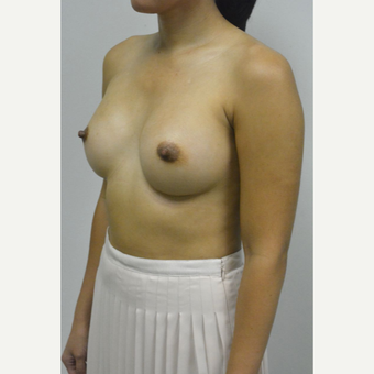 35-44 year old woman treated with Breast Implants after 3005062