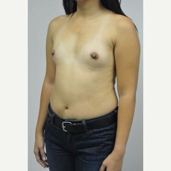 35-44 year old woman treated with Breast Implants before 3005062