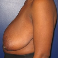 Breast Reduction before 1569664
