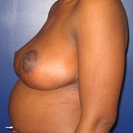 Breast Reduction after 1569664