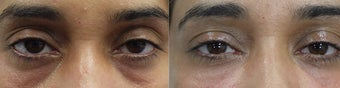 Belotero Injections for Under Eye Hollowness (Tear Trough Deformity) before 1410613