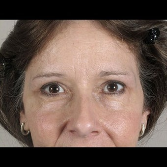 54 Year Old Female Seeking Eyelid Lift & Brow Lift