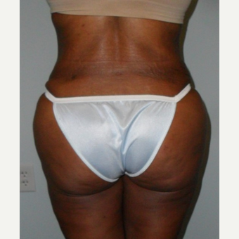 35-44 year old woman treated with Brazilian Butt Lift after 3414898