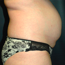 35 year old woman treated with Tummy Tuck before 3578394