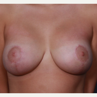 Breast lift with implants after 3265906