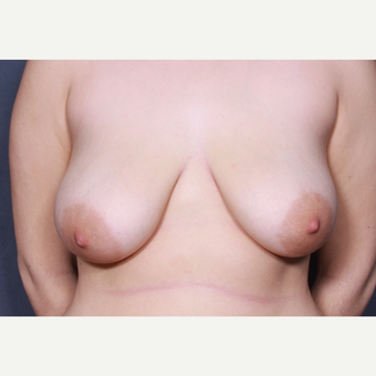 Breast lift with implants before 3265906