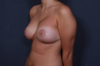 Breast lift with implants 3265906