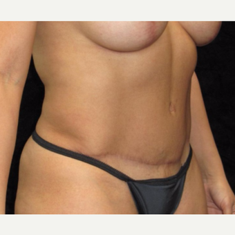 40 year old woman treated with Tummy Tuck after 3025927