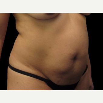40 year old woman treated with Tummy Tuck before 3025927