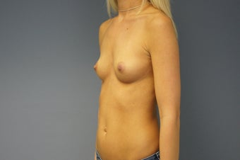 25yo Breast Augmentation 989530