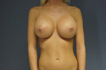 25yo Breast Augmentation after 989530