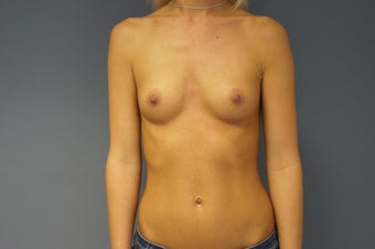 25yo Breast Augmentation before 989530
