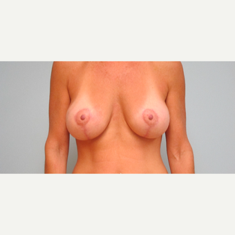 35-44 year old woman treated with Breast Lift with Implants after 3306010