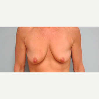 35-44 year old woman treated with Breast Lift with Implants before 3306010