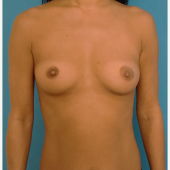 35-44 year old woman treated with Breast Implants before 3259148