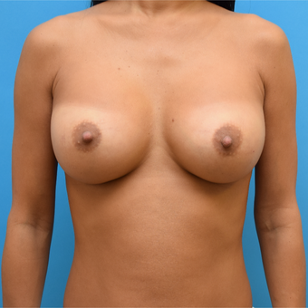 35-44 year old woman treated with Breast Implants after 3259148