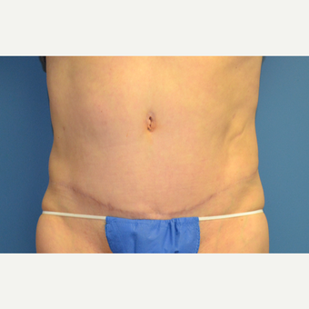 45-54 year old woman treated with Tummy Tuck after 3258723