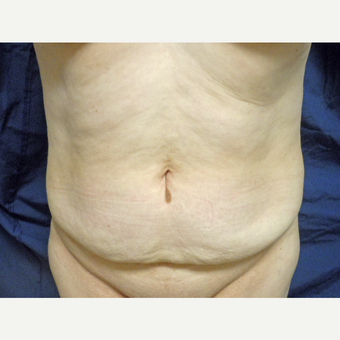 45-54 year old woman treated with Tummy Tuck before 3258723