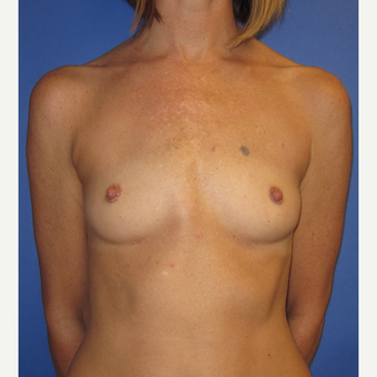 35-44 year old woman treated with Breast Augmentation (371cc) before 2844459