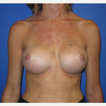 35-44 year old woman treated with Breast Augmentation (371cc) after 2844459