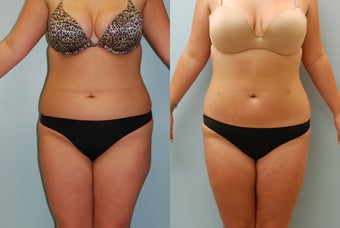 Liposuction: 23-Year-Old Woman