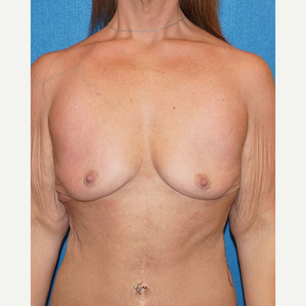 33 year old woman treated with Breast Augmentation before 3576672