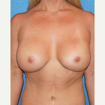 33 year old woman treated with Breast Augmentation after 3576672