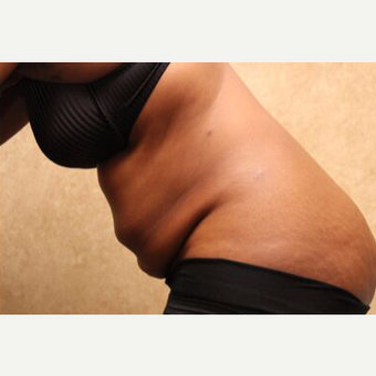 Tummy Tuck with Liposuction before 3454617