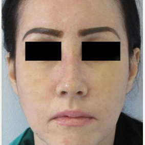Rhinoplasty after 2993771