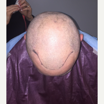 35-44 year old man treated with FUE Hair Transplant before 3109467