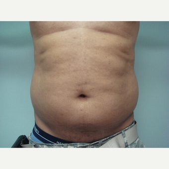 35-44 year old man treated with Liposuction before 3300005