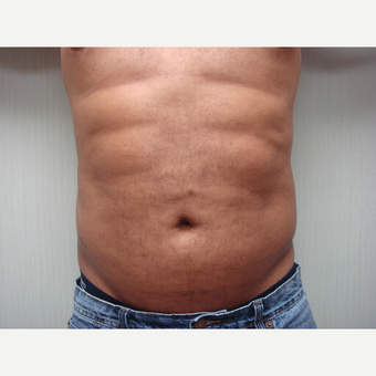 35-44 year old man treated with Liposuction after 3300005