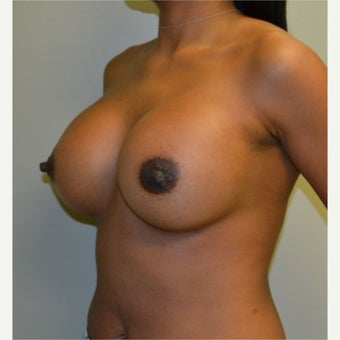 35-44 year old woman treated with Breast Augmentation after 2564677