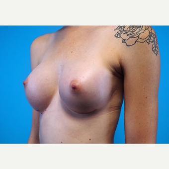 25-34 year old woman treated with Breast Implants after 3440950